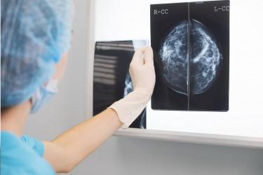 Una sanitaria examinando una mamografía - FOTO: Xunta