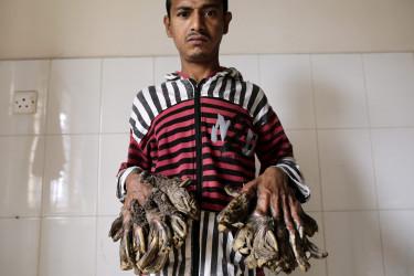 Abul Bajandar, diagnosticado con epidermodisplasia verruciforme - FOTO: EFE